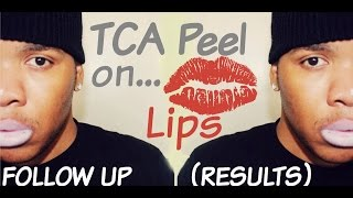 tca chemical peel on lips   follow up results   session 3