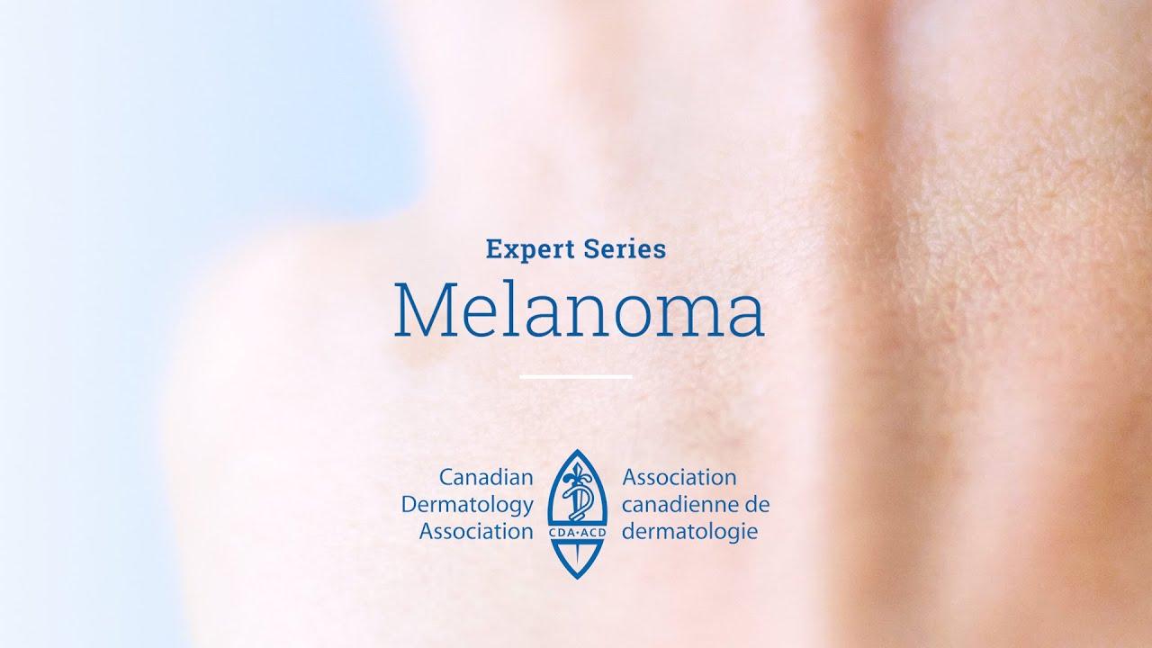 Melanoma - Canadian Dermatology Association