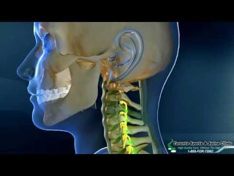 whiplash-treatment-vaughan- -neck-pain-treatment-vaughan- -motor-vehicle-accident-treatment-vaughan