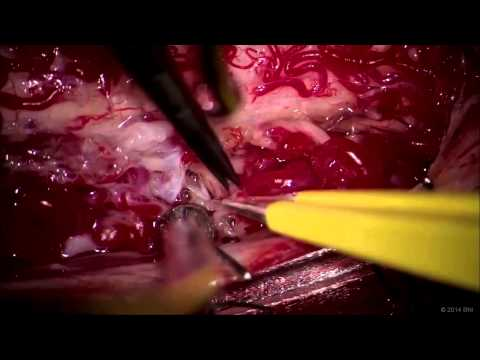 Microsurgical resection of cervical spinal AVM: the pial resection technique
