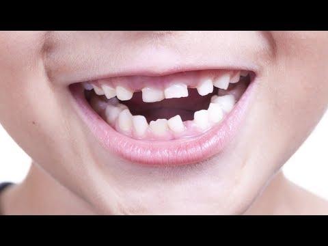 Ранок з Інтером: Папа-блог: скрежет зубов у ребенка