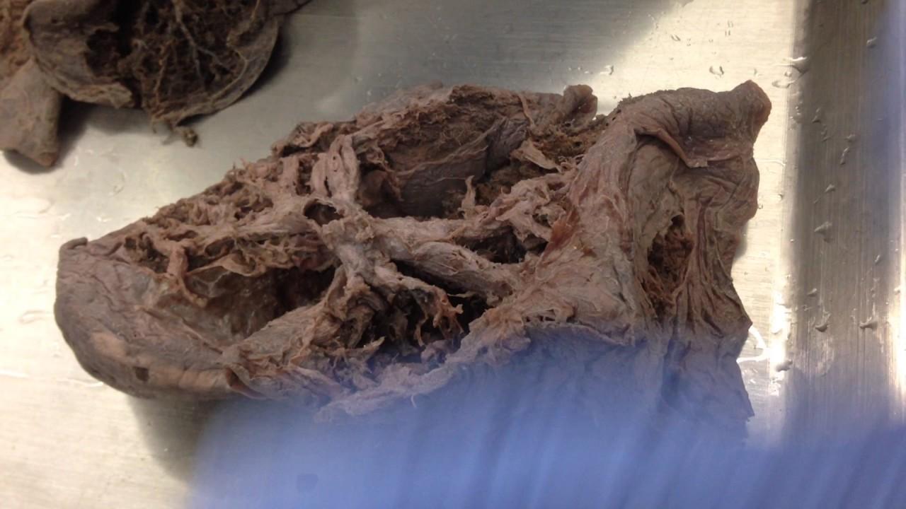 Anatomía del pulmón: orientación del árbol bronquial - YouTube