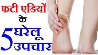 7 Home Remedies For Cracked Heels फटी एडियों के उपचार Beauty Tips in Hindi by Sonia Goyal #94