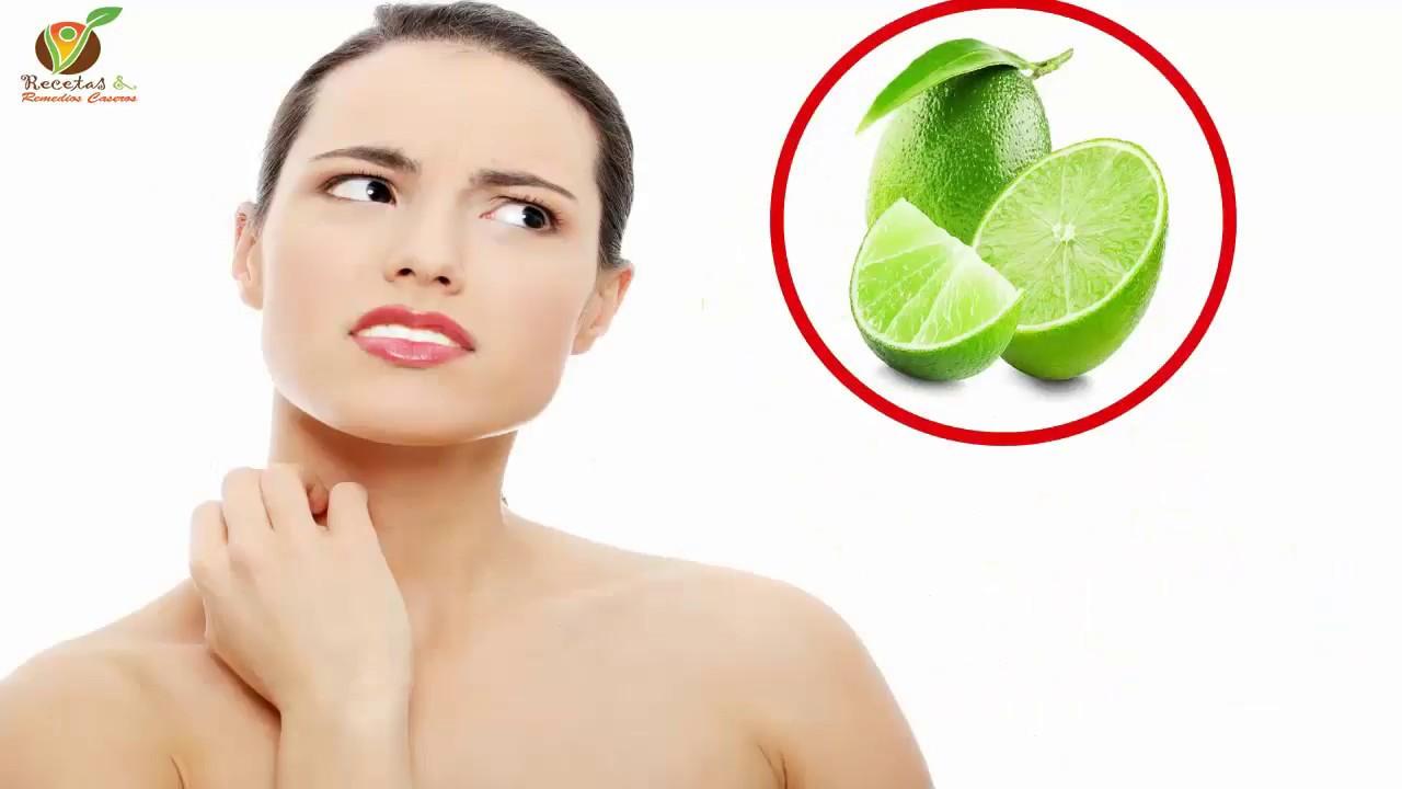 remedios caseros para la comezon en la piel