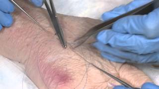 How to suture - part 3: Running mattress sutures and subcuticular sutures