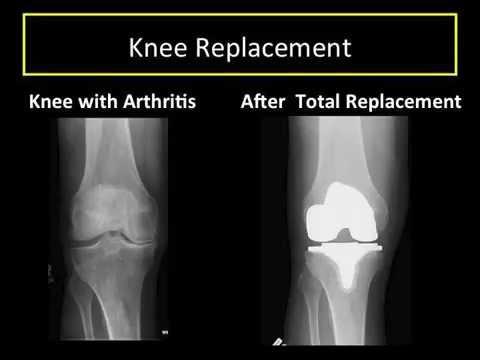 Understanding Knee Arthritis Partial And Total Knee