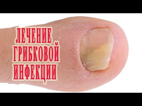 ★Лечение Грибка стопы и ногтей на ногах. Причины. Виды. Симптомы. Профилактика.