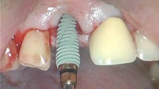 Имплантация и установка временной коронки