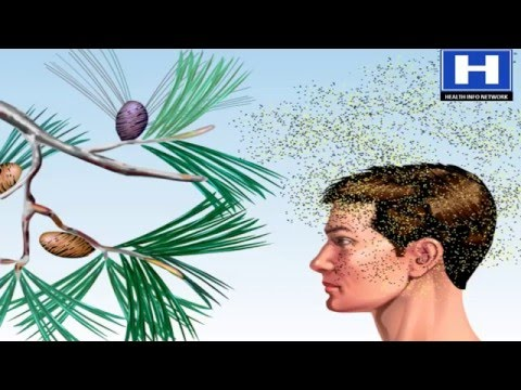 Pollens allergy sneezing treatment, Causes and Prevention