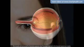 Diabetes Blindness and blurry vision Retinopathy