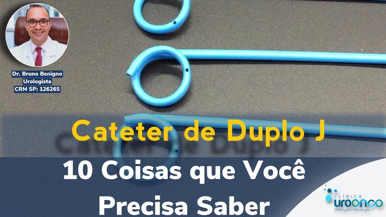 10 Coisas que você precisa saber sobre Cateter de Duplo J.