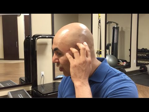 How to find and treat temporalis muscle trigger points - trigger point therapy - headache relief