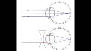 Refractive Errors - Hyperopia, Myopia, Astigmatism, Accommodation & Presbyopia