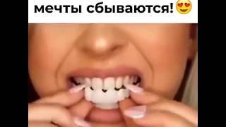 Что такое виниры Perfect Smile Veneers