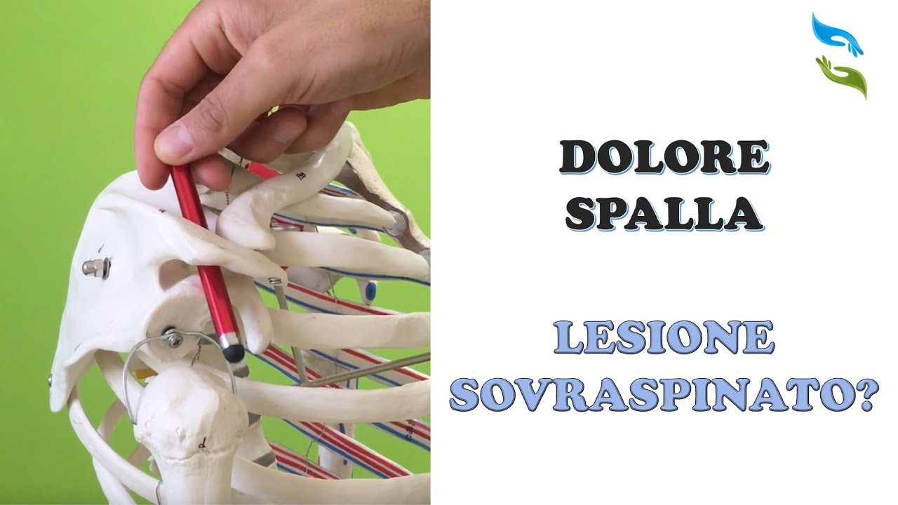 Dolore spalla, lesione tendinea e muscolare - YouTube
