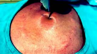 Back Abscess Cyst Huge Infected Sebaceous Popping Big Drainage Pus YouTube