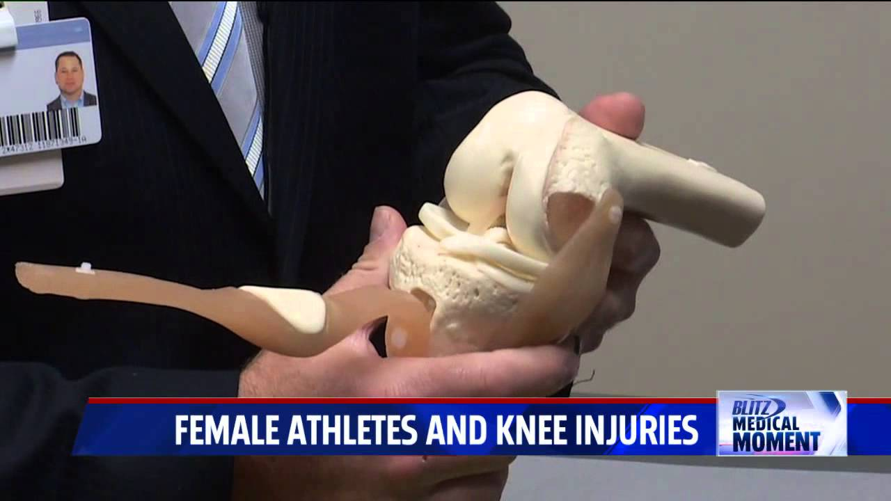 acl injuries in female athletes However what is interesting is that acl injuries are more common in female  athletes, who are up to eight times more likely to injure their acl than male  athletes.