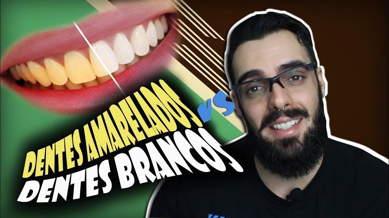 Dentes Amarelados Vs Dentes Brancos Curiosidades Youtube