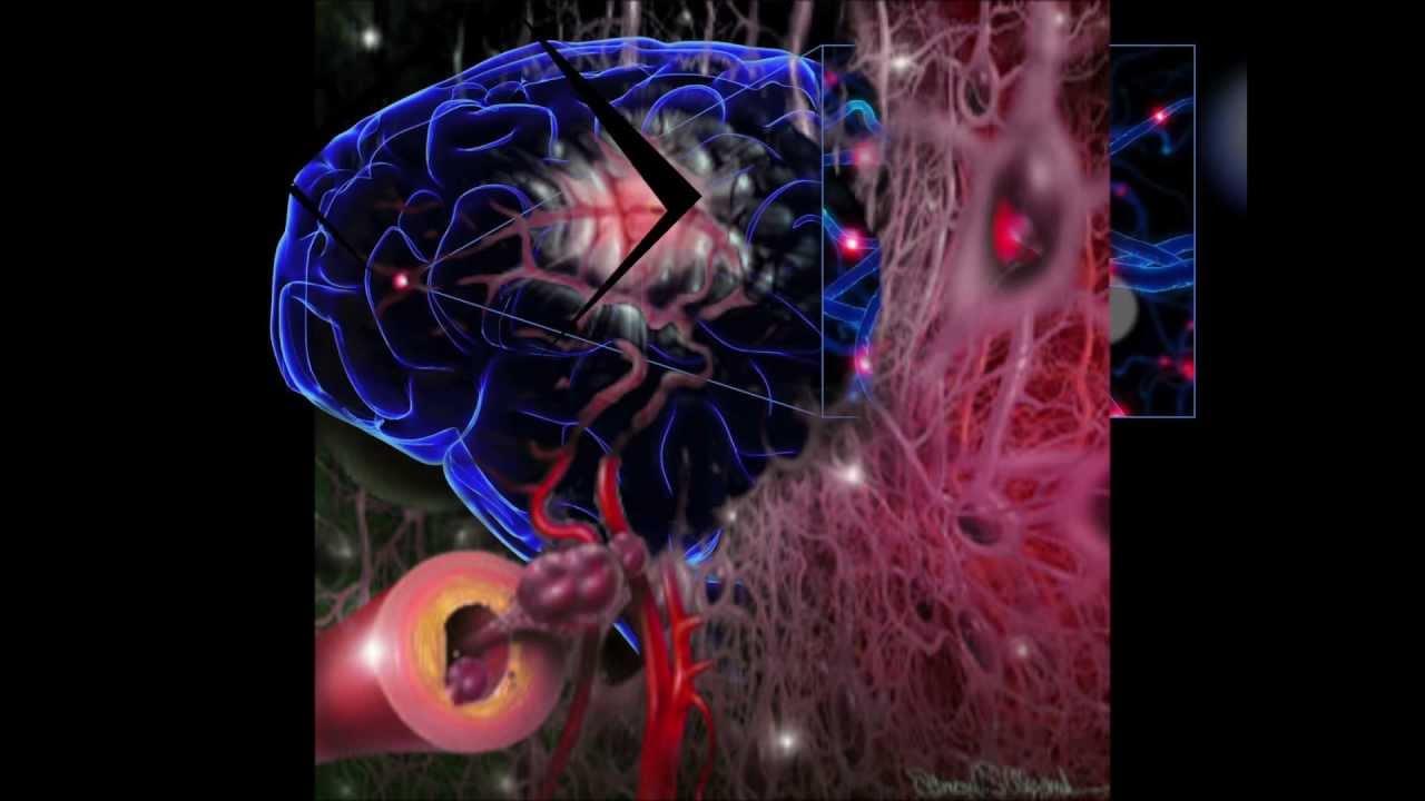 mala irrigacion sanguinea cerebral