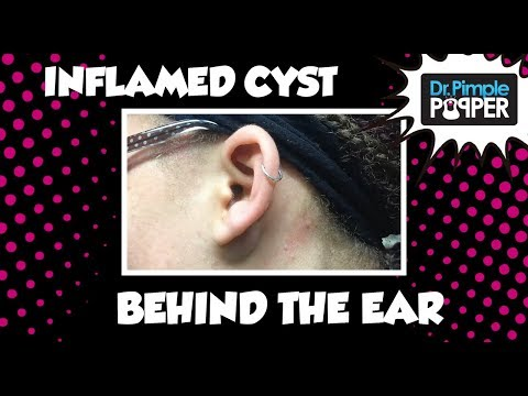 Thumbnail: Incision & Drainage of Inflamed Cyst behind left ear