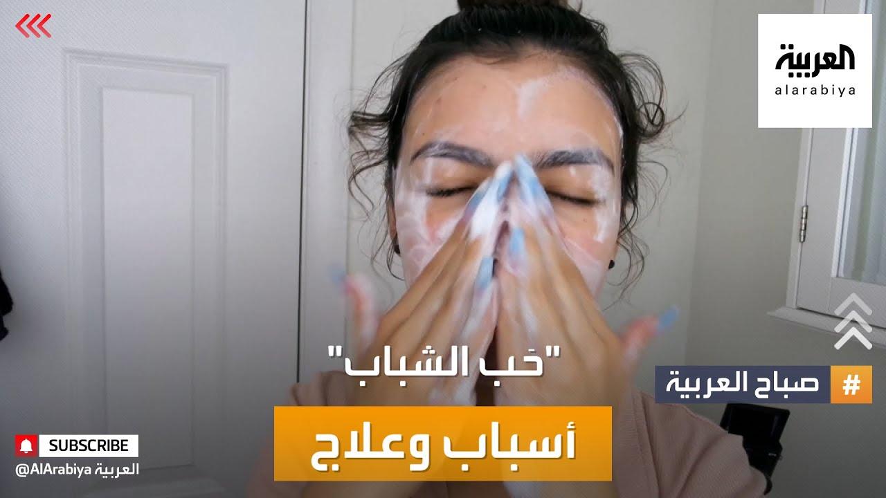 صباح العربية | كيف تتعامل مع مشكلة حب الشباب في الصيف؟  - نشر قبل 5 ساعة