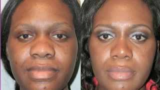 Ethnic Bulbous Nose Tip Correction Surgery Before and After Photos