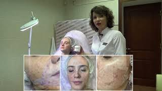 Курс лечения акне косметикой DMK