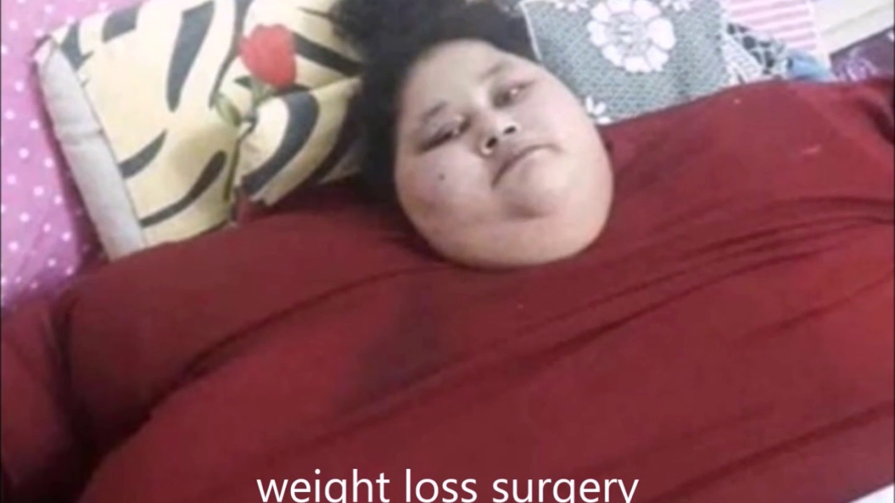 Fattest Kid In The World Loses Weight  Kids-1439