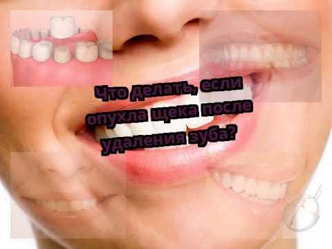 Что делать если болит десна и опухла щека после удаления зуба