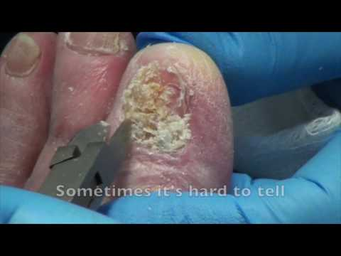 FUNGAL NAIL ON BIG TOE – with commentary