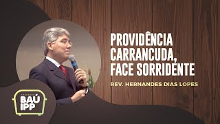 Providência Carrancuda, Face Sorridente | Baú IPP | Episódio 10 | IPP TV
