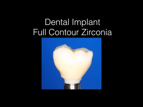 Dental Implant FCZ - Full Contour Zirconia Implant Crown on WP