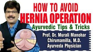 How to Avoid Hernia Operation | Prof. Dr. Murali Manohar Chirumamilla, M.D. (Ayurveda) thumbnail