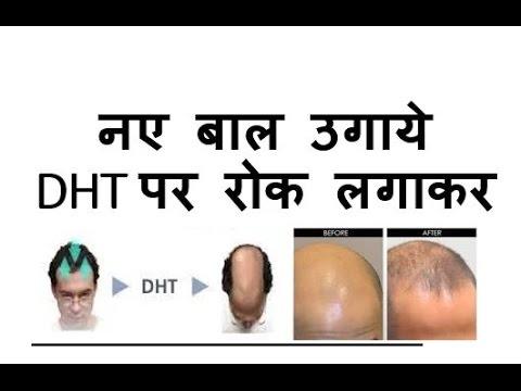 100 % नए बाल उगाये DHT पर रोक लगाकर   Block DHT, Regrowth new hair 100%