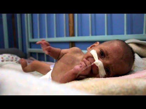 Près de Damas, la malnutrition menace des milliers d'enfants