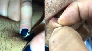 ВЫДАВЛИВАНИЕ ЧЕРНЫХ ТОЧЕК УГРИ на ЛИЦЕ ЧИСТКА ЛИЦА ПРЫЩИ АКНЕ Pimple Popping Compilation