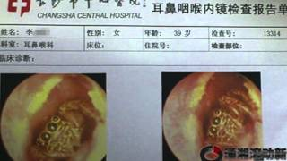 Doctor Finds Spider Inside Woman's Ear Canal