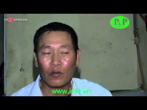 [[www.inkt.vn - In & Bao Bi Kon Tum]] BÉ GÁI CHẾT BẤT THƯỜNG TẠI BỆNH VIỆN ĐA KHOA HUYỆN QUỐC OAI
