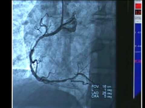 Cardiac Cath With Angioplasty Youtube