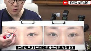 [쌍꺼풀 재수술 사례] 쌍꺼풀 수술 후 눈이 마음에는 …