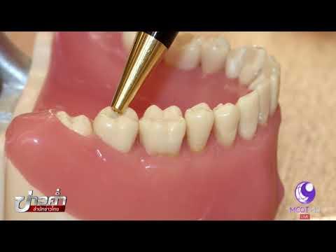 ชัวร์ก่อนแชร์ : จะผ่าฟันคุดต้องรอให้เห็นฟันขึ้นก่อน จริงหรือ?