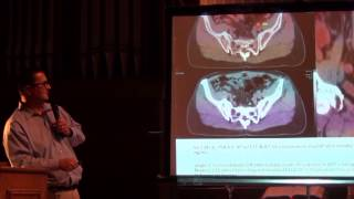 "488. Fabio Almeida, M.D. ""Carbon -11 Acetate PET/CT imaging of the prostate - an update."""