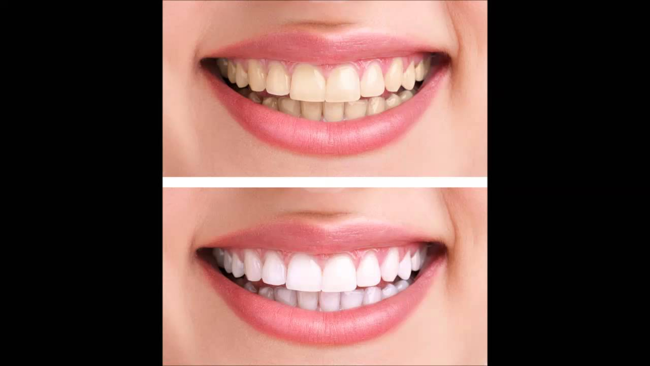 Gel Whitening Teeth I Provide You Best Teeth Whitening Youtube