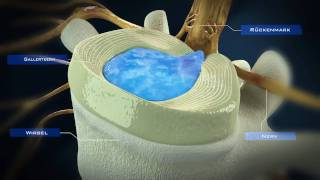 WZK_Herniated_Disc_Intradiscal_Electrothermal_Therapy Thumbnail