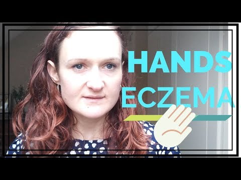 SEVERE ECZEMA ON HANDS TREATMENT -SPLITTING FINGERS SOLUTIONS