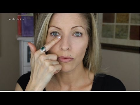 Part 2 - Restylane Under Eye Filler Injections for Under Eye