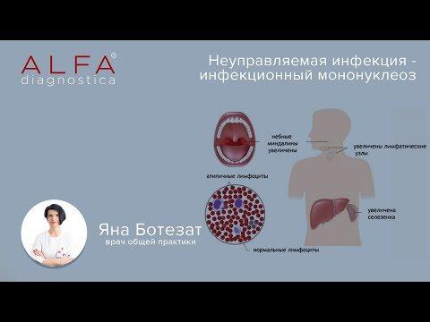 Инфекционный мононуклеоз. Инфекционные болезни