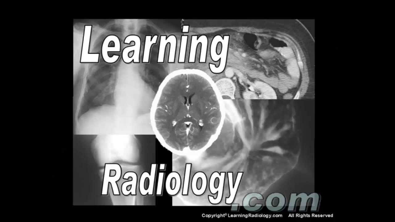 Radiology - Magazine cover