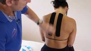 How to treat thoracic Back Pain and Rhomboids using Kinesiology Taping