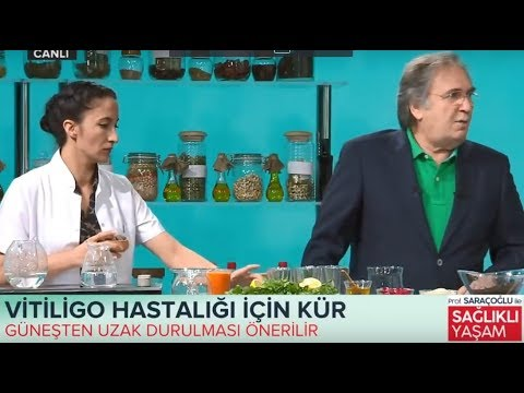 Vitiligo Hastalığı Için Kür Prof İbrahim Adnan Saraçoğlu Şifalı Bitkiler